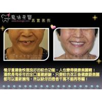 Buy cheap Cosmetic Dental Implants from wholesalers