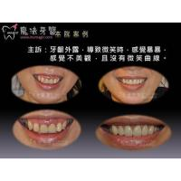 Buy cheap Full Mouth Dental Implants product