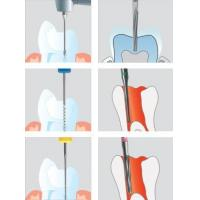 Buy cheap Root canal instruments for dentists from wholesalers