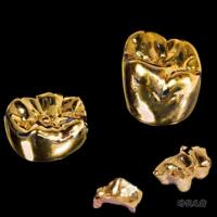 Buy cheap High-Precions Yellow Gold Crown from wholesalers