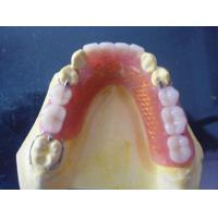 Buy cheap Fixed partial denture from wholesalers