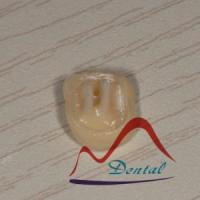 Buy cheap Dental removable post core in crown from wholesalers
