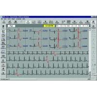 Buy cheap Philips Holter Monitoring Software from wholesalers