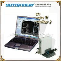 Buy cheap SW-2100 Ophthalmic Ultrasound AB Scanner from wholesalers