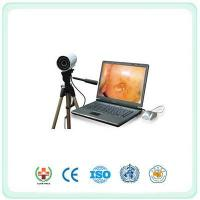 Buy cheap SY9800 Portable Digital Electronic Colposcope from wholesalers