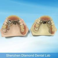 Buy cheap high quality customized partial Co-Crmetal framework denture from wholesalers