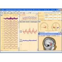 Buy cheap BESA Research 5.3Choose the best signal processing for your EEG and MEG data from wholesalers